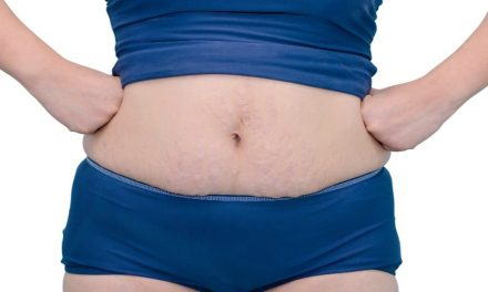 How The Heck Do You Start Loving Your Mom Bod?